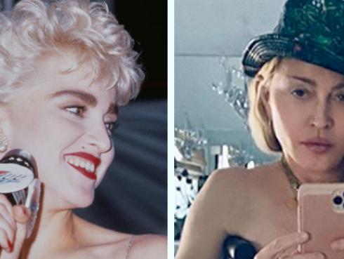Madonna hace topless y posa con muletas a los 61 años